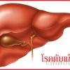 โรคตับและการใช้สมุนไพรในการบำรุง รักษาและป้องกันโรคตับ
