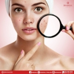 Beauty Tips ::: สิวนี้ชี้อาการได้